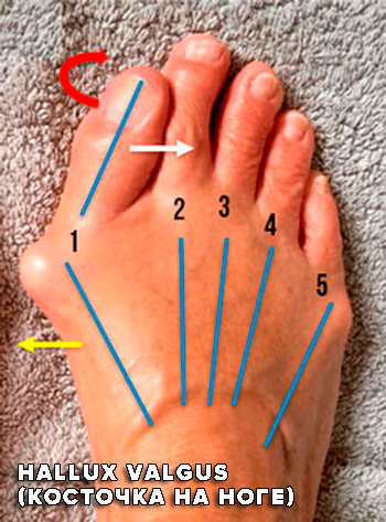 Hallux Valgus косточка на ноге лечение