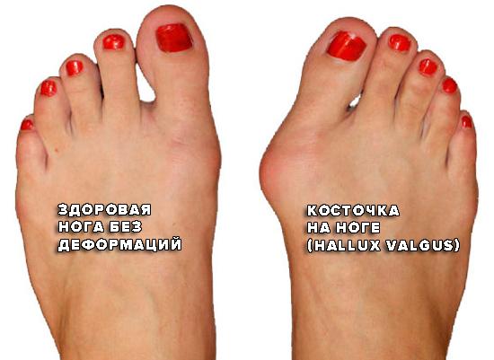 Как выглядит косточка на ноге Hallux Valgus