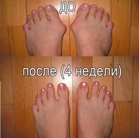 Фиксатор Valgus Pro отзывы, средство от косточки на ноге Valgus Pro отзывы